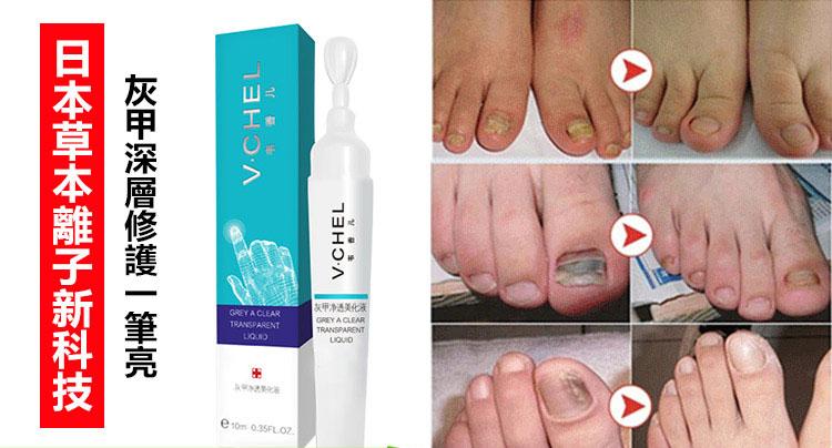 V.CHEL灰甲淨透美化液,灰指甲用藥,灰指甲治療新方法